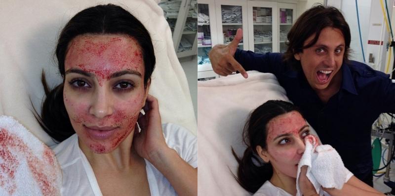 Kim K Blood Facial