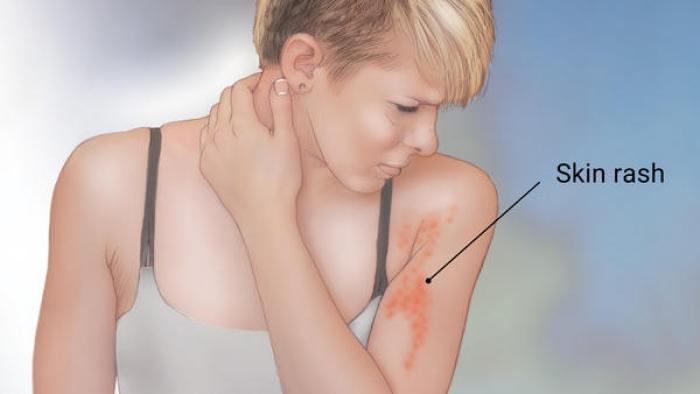 Typhoid Fever_resized