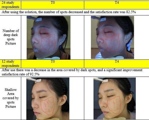 Glutalight Whitening System